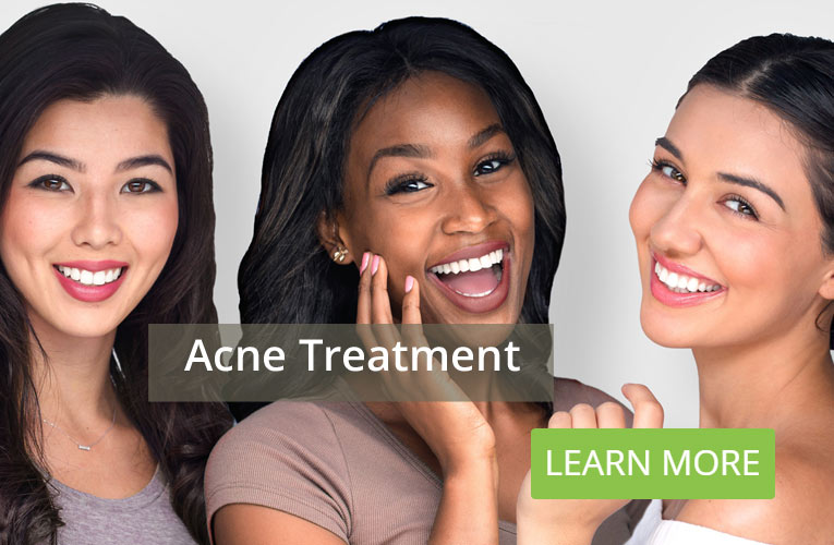 Acne Treatment Grand Rapids