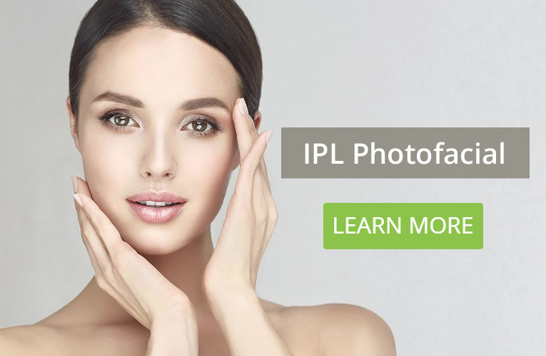 IPL Photofacial Grand Rapids