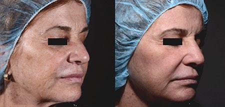 Laser Skin Care Grand Rapids
